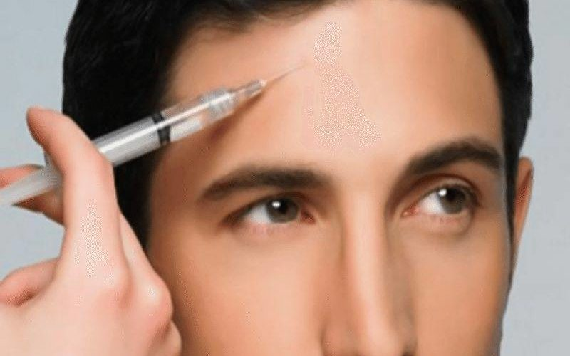 The Rise of 'Brotox'- Botox for Men