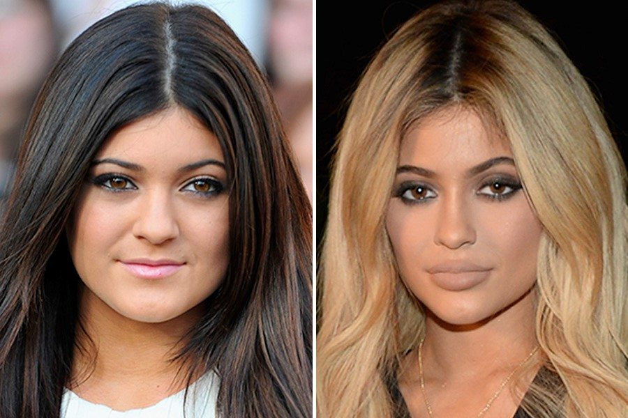 the-kylie-jenner-effect