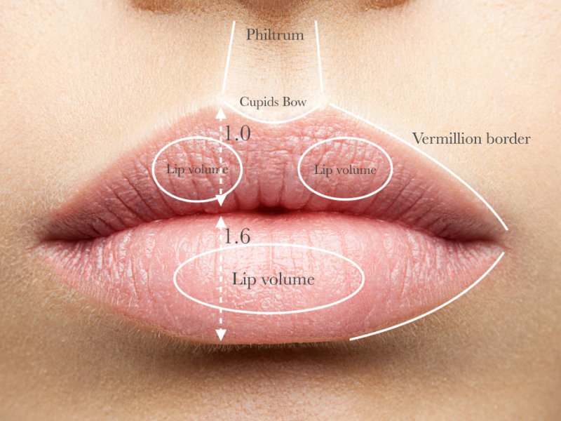 Lip Filler Masterclass Course