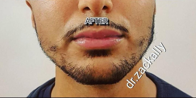 Chin and Jawline Filler