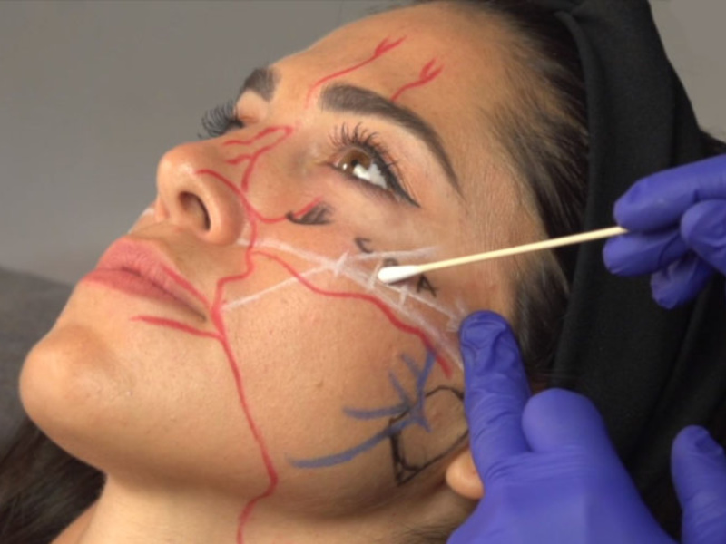 Derma Medical Launches Online Training Videos