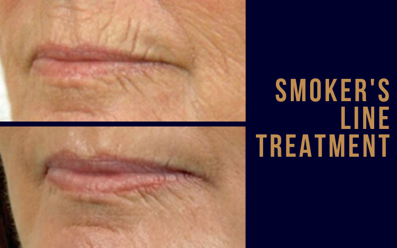 Smoker's Lines/Perioral Treatment