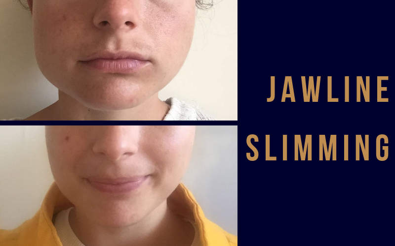 The Right Jawline Defining Treatment for You | Derma Medical