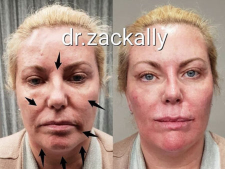 Panfacial Rejuvenation
