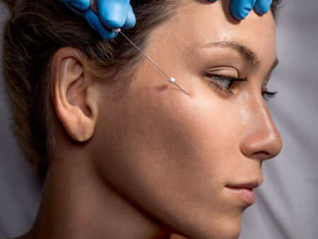 a lady having microcannula inserted into her cheek