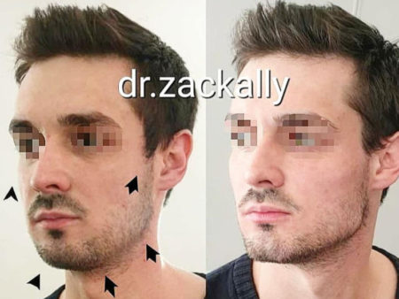 Signature Masculinisation by Dr Zack Ally